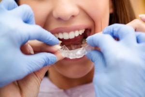 Mobile AL Orthodontics, Mobile AL Six Month Smiles