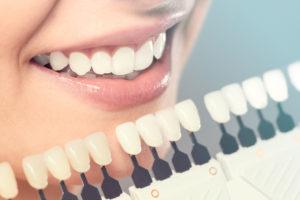 Lumineers Mobile AL Dentist Vs Veneers Dental Office