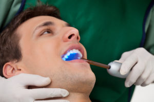 Mobile AL Dental Fillings, Mobile AL Dental Sealants